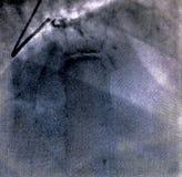 Hartventriculografie Catheteriseren stock foto's