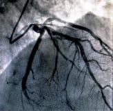 Hartventriculografie Catheteriseren stock fotografie