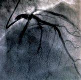 Hartventriculografie Catheteriseren royalty-vrije stock foto
