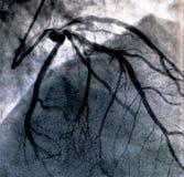 Hartventriculografie Catheteriseren royalty-vrije stock foto's
