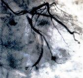 Hartventriculografie Catheteriseren royalty-vrije stock afbeeldingen