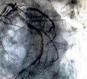 Hartventriculografie Catheteriseren stock afbeelding