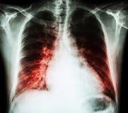 Hartverlamming (PA van de film x-ray borst rechtop: toon cardiomegaly en interstitial infiltreert beide long) Stock Fotografie