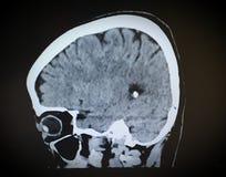 Haupt-CT-Scan lizenzfreie stockbilder