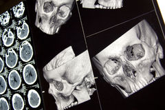 Hauptknochen und Gehirn, CT im Trauma Stockbild