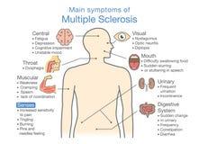 Hauptsymptome der multipler Sklerose Lizenzfreie Stockbilder