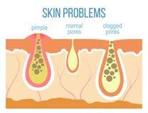 Haut étroit de pores de peau illustration libre de droits