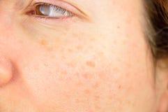 Haut der Frau mit Verunstaltung und Stellen lizenzfreies stockfoto
