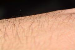 Haut mit dem Haar im Makro stockfoto