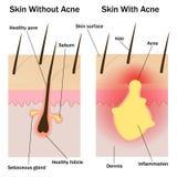Haut mit und ohne Akne Lizenzfreies Stockfoto