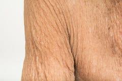 Haut-und Falten-Behandlungs-Falten lizenzfreie stockfotografie
