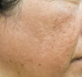 Haut und Falten Dunkle Flecke auf dem Gesicht stockbild