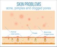 Haut und Poren lizenzfreie abbildung