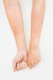 Hautausschläge, AllergieKontaktdermatitis, allergisch zu den Chemikalien Stockfoto
