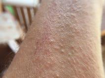 Hautausschlag auf Mannhand lizenzfreie stockfotos