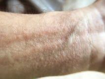 Hautausschlag auf Mannhand stockfotos