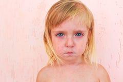 Hautausschlag im Kind mit roseola stockfotografie