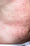 Hautausschlag oder Sonneallergie lizenzfreie stockfotografie