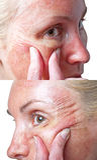 Hautbedingung nach chemischem Schale TCA. stockbild