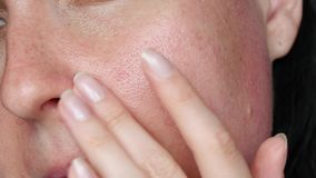 Hautbeschaffenheit mit vergrößerten Poren Eine Frau berührt ihr Gesicht und macht eine Massagenahaufnahme Problemhautpflege, Anti stock video