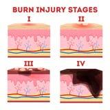 Hautbrandverletzungsstadien Anatomie der Haut stock abbildung