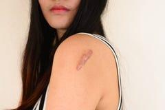 Hautläsionen von den Allergien lizenzfreie stockfotografie