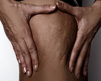 Hautproblem der Frauen - Cellulite Lizenzfreie Stockfotos