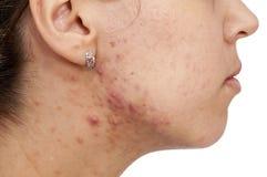Hautprobleme Stockfotografie