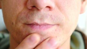 Hautreizung nachdem dem Rasieren Bemannen Sie das Verkratzen mit seinen Armpickeln auf dem Kinn Nahaufnahme der Nase, der Lippen  stock video