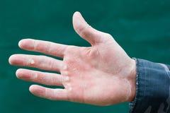 Hautrisse auf einer Hand. Stockfoto