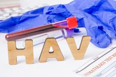HAV Medical acronym or abbreviation of hepatitis A virus in laboratory test diagnostics and physical diagnosis. Word HAV is near b. Lood sample in lab tube stock photo