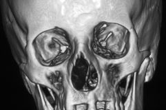 Head. Close up MRI of human head on black and white film royalty free stock photo