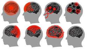 Head brain Royalty Free Stock Photography