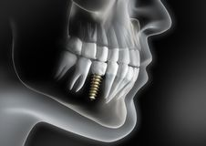 Head with dental implant in jaw stock illustration