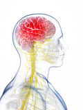 Head - headache Stock Photo