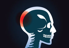 In head of human have a red signal. Royalty Free Stock Photo