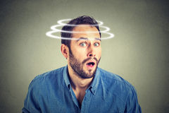 Free Head Is Spinning. Surprise Astonished Man Stock Photo - 61647090