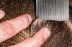 Head lice infection. A young school girl is having her hair checked for head lice using a special comb stock photo