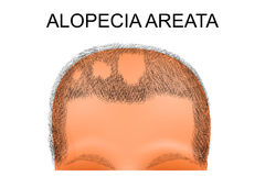 Head of a man suffering from alopecia areata. Illustration of a head of person suffering from alopecia areata Stock Image