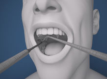 Head, mouth open, dentist Preparation tool Royalty Free Stock Photo