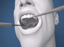 Head, mouth open, dentist Preparation tool Stock Photo