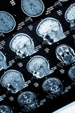 Head MRI scan, anonymized Stock Image