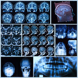 Head and neck anatomy. X-ray, tomography and MRI scans of the Human head stock image
