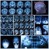 Head and neck anatomy Stock Image