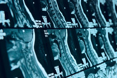 Head and neck MRI scan, anonymized. Shallow focus depth Royalty Free Stock Images