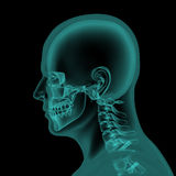 Head and neck x-ray scan Stock Images