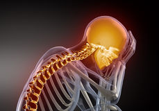 Head Pain concept Stock Images