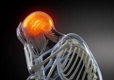 Head Pain concept Royalty Free Stock Photography