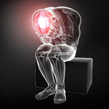 Head pain in male Stock Photo