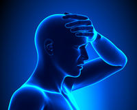 Head pain. A Man with a Headache Royalty Free Stock Photo